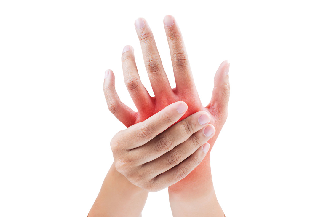 What is arthritis, what causes it, and can people avoidgetting it?