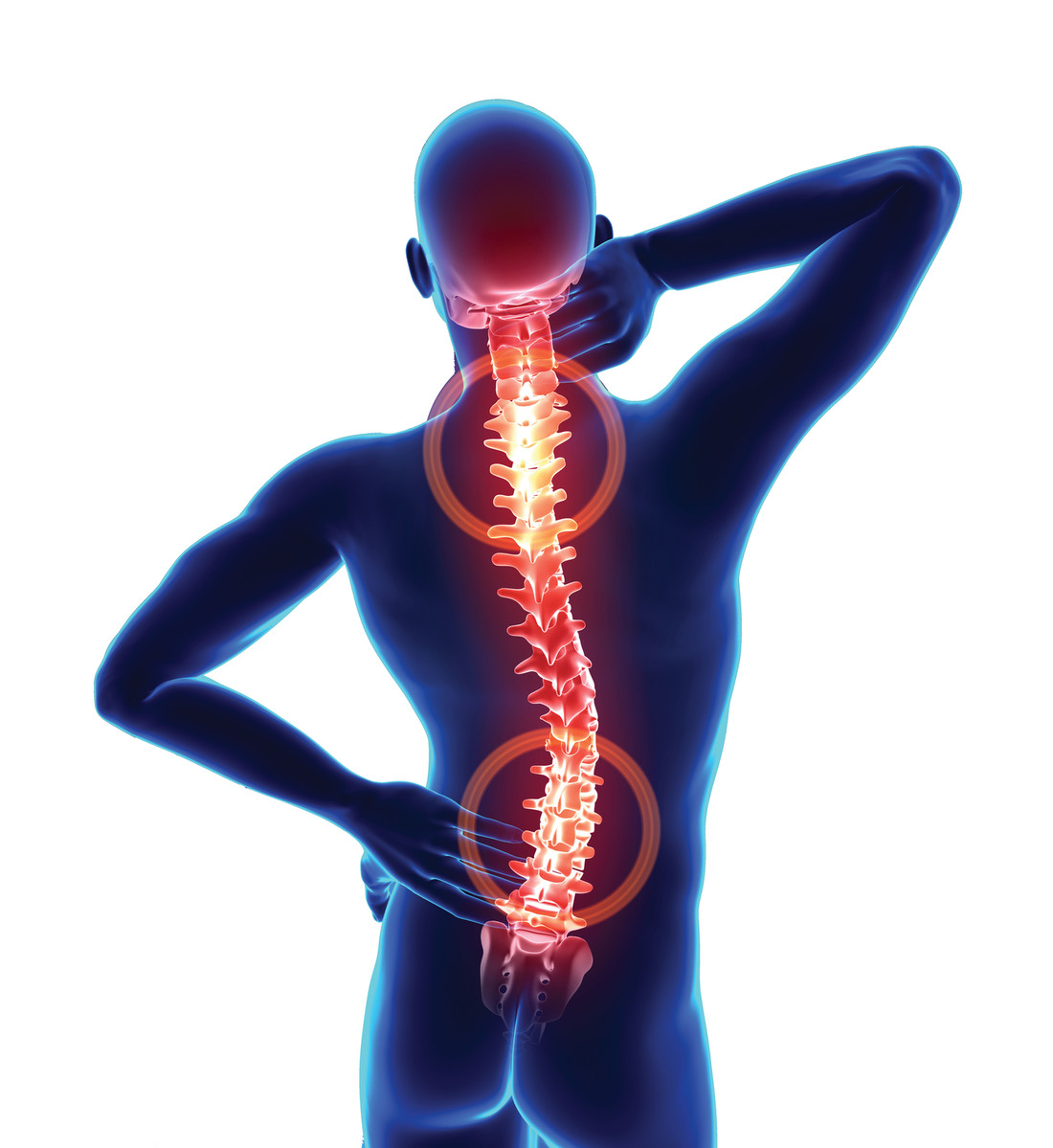 What Are Some Common Causes of Back and Neck Pain?