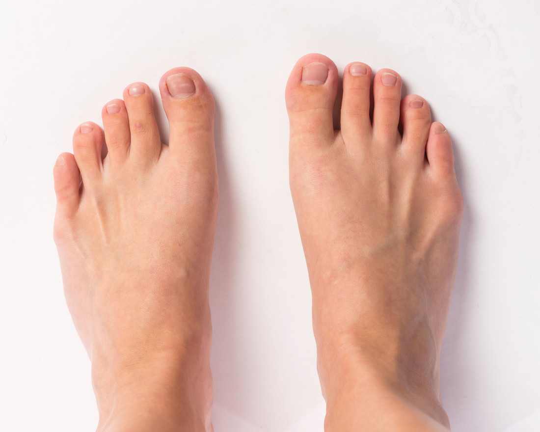 Diabetic Foot Ulcers: Prevention and Treatment • Sentara RMH Magazine