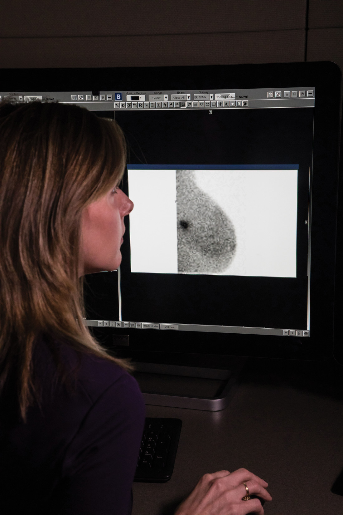 Molecular Breast Imaging